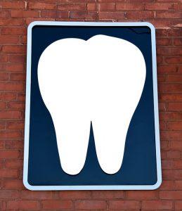 A fog implantátum számos előnye